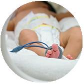 Se considera un bebé prematuro cuando este nace antes de la semana 37 y/o presenta muy bajo peso. En ocasiones estos niños pueden presentar alteraciones a lo largo de su desarrollo.